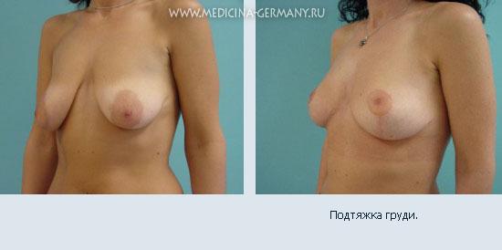 Увеличить грудь на размерах