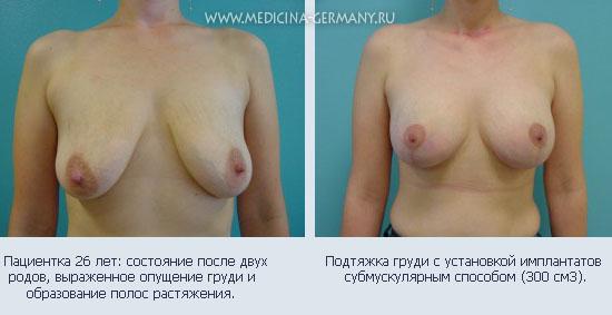 Сколько стоит операция по увеличению грудей в ставрополе