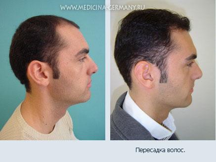 Выпадение волос пятнами лечение