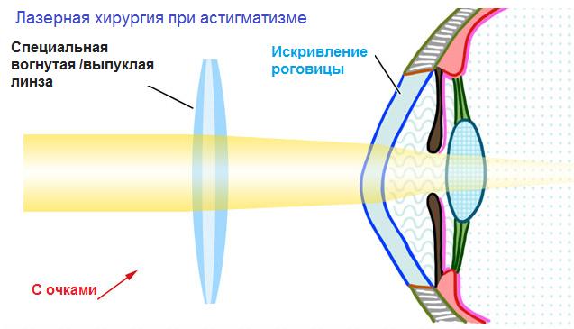 Каким продуктом понизить глазное давление